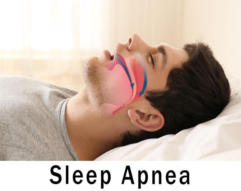 Asheville mattress store - Can the Right Mattress Help with Sleep Apnea?